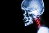 Рентген шиї - особливості проведення, розшифровка та рекомендації